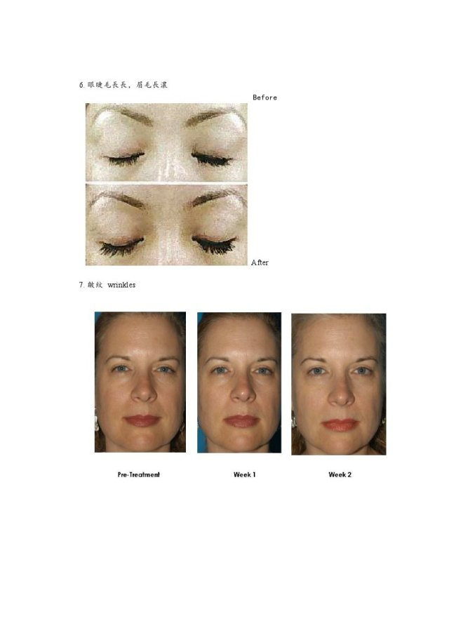 Before and After Treatment Results 3