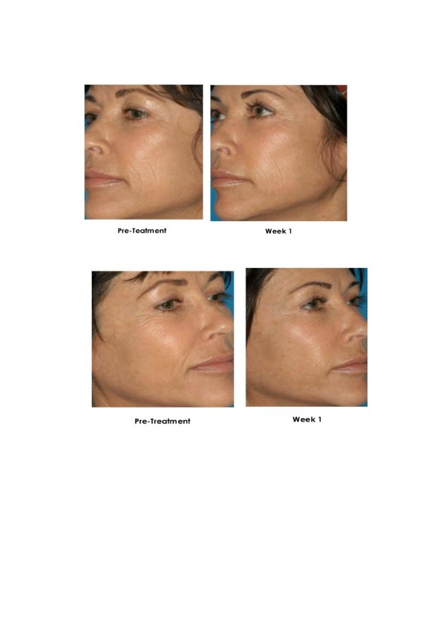 Before and After Treatment Results 4